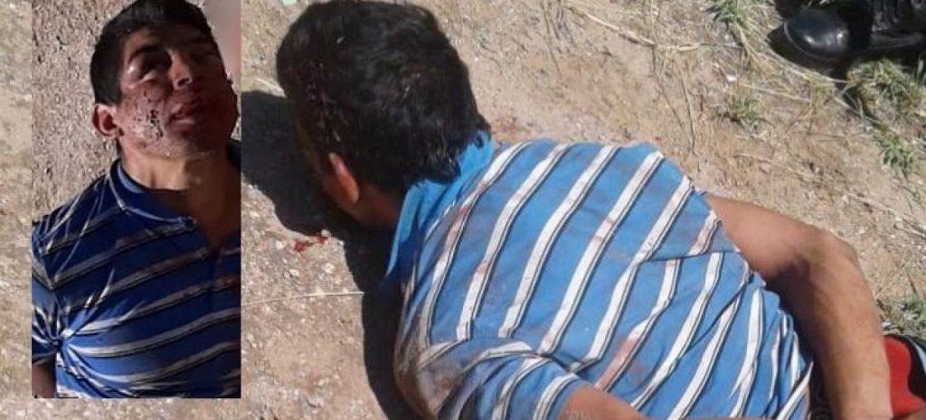 Ladrón golpeado por su víctima arrastra graves secuelas